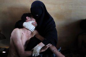 Una mujer sostiene a un pariente herido en sus brazos, dentro de una mezquita utilizada como un hospital de campaña por los manifestantes contra el gobierno del presidente Ali Abdullah Saleh, durante los enfrentamientos en Sanaa, Yemen el 15 de octubre de 2011.