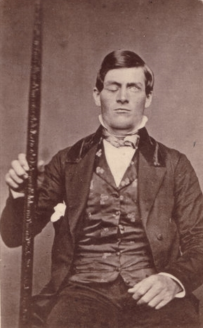 A portrait of Phineas Gage.