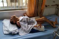 Phan Thanh Hung Duc, 20, a patient at the Tu Du Hospital in Ho Chi Minh City, Vietnam, last October. Credit Richard Hughes