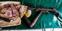 A girl seriously affected with cholera.