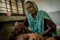 A Rohingya refugee in Bangladesh who suffered burns when her house in Myanmar was set ablaze by soldiers. Credit Tomas Munita for The New York Times