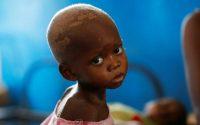 El 15 de marzo de 2018, Ntumbabu Kalubi, quien sufre de malnutrición severa, esperaba recibir atención médica en el hospital Tshiamala, en Kasai, una provincia en el Congo. Credit Thomas Mukoya/Reuters