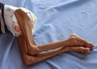 A Yemeni child suffering from malnutrition lies on a hospital bed in northwestern Hajjah Province on Sept. 19. (Essa Ahmed/AFP/Getty Images)