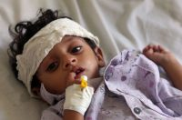 A Yemeni child after receiving treatment for malnutrition in a hospital in Taiz on Wednesday. (Ahmad Al-Basha/AFP/Getty Images)