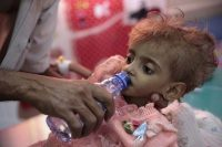 A father gives water to his malnourished daughter at a feeding center in a hospital in Hodeida, Yemen, in September. (Hani Mohammed/AP)
