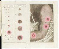 Brazo con pústulas de viruela. Wikimedia Commons