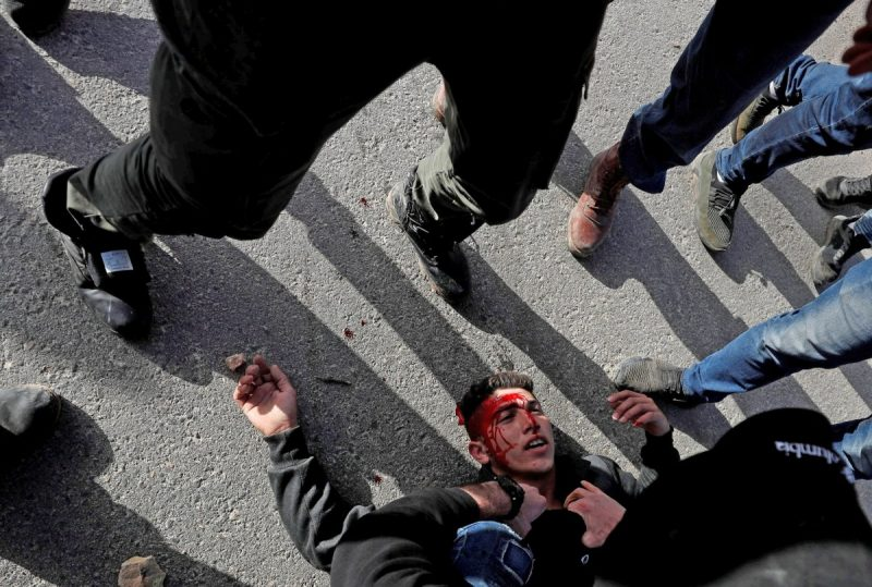 A wounded Palestinian demonstrator being helped during a protest against Israeli settlements, near the town of Beita in the Israeli-occupied West Bank on March 11. Credit Mohamad Torokman/Reuters