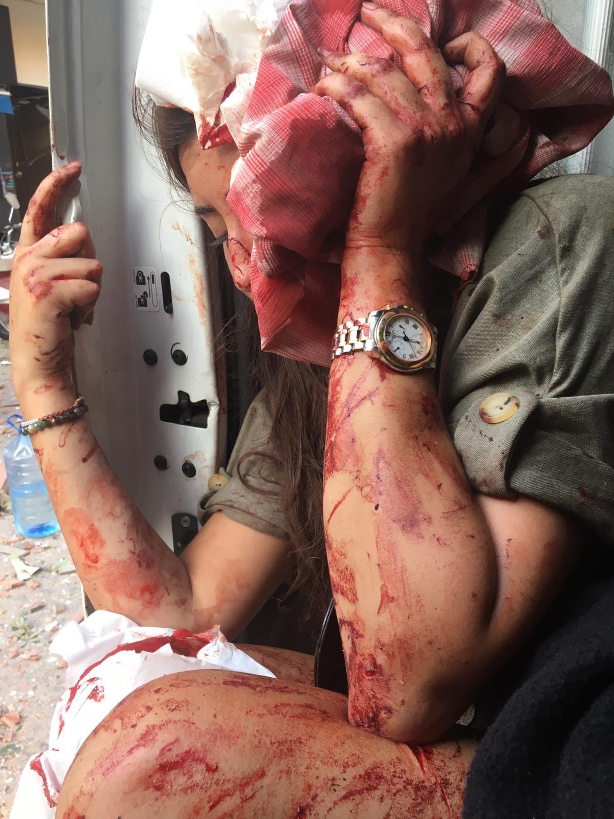 An injured woman riding in the ambulance, Beirut, August 4, 2020. Seema Jilani/Dion Nissenbaum